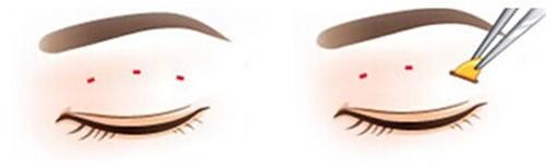 我是做的三点定位双眼皮,做完三个月了,但是看起来眼睛还是很肿,我想