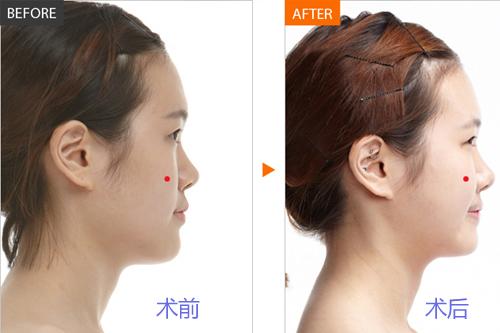 从而设计出适合您的手术方案,让您实现理想的面部填充效果.