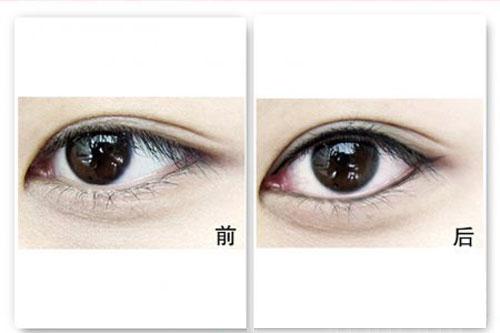 百嘉丽纹美瞳线--自然隐形眼线 《《《《在线咨询      崇尚素颜