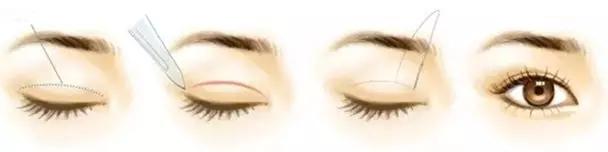 几乎等同于天然双眼皮的生理结构