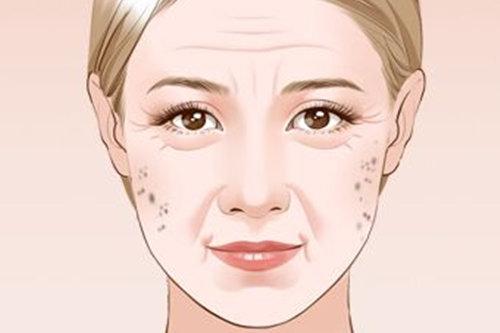 不了解自己脸上斑的形成原因?点击咨询专业医生-老年斑如何去掉 百