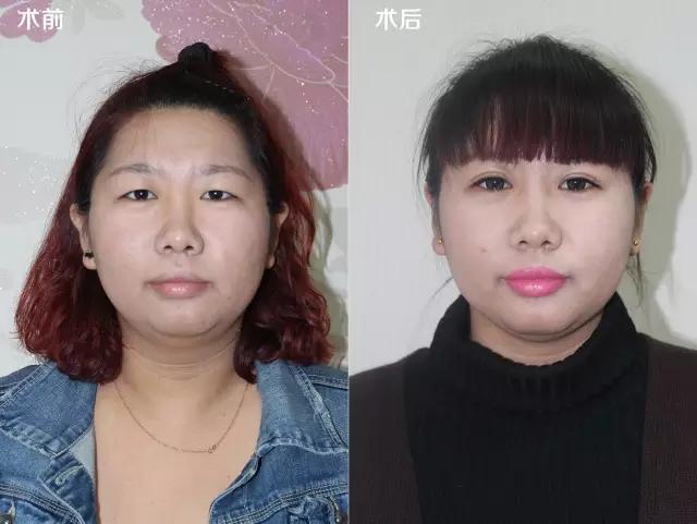 韩式微创切开双眼皮 打造给力电眼